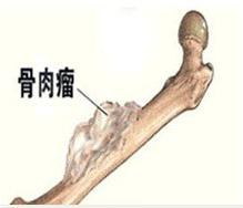骨肉瘤化疗后引发的不良症状