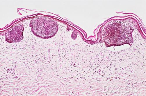 如何防止皮肤癌手术复发