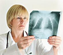 肺鳞癌早期会有哪些症状